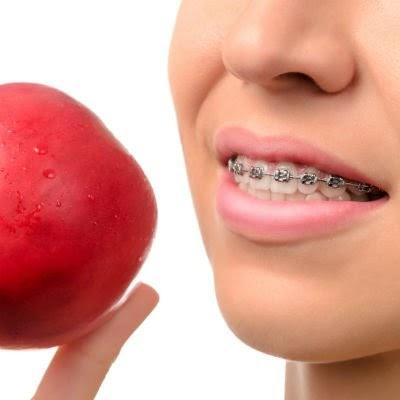 Entenda a relação entre dietas e problemas ortodônticos